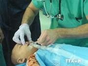 Programa devuelve sonrisa a niños con defectos labiales