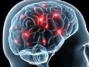 Demencia cerebro-vascular, enfermedad más frecuente en Asia
