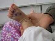 Crecen enfermos de mano-pies-boca en Viet Nam