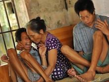 [Fotos] El dolor silencioso por dioxina en Vietnam, a 43 años del fin de la guerra